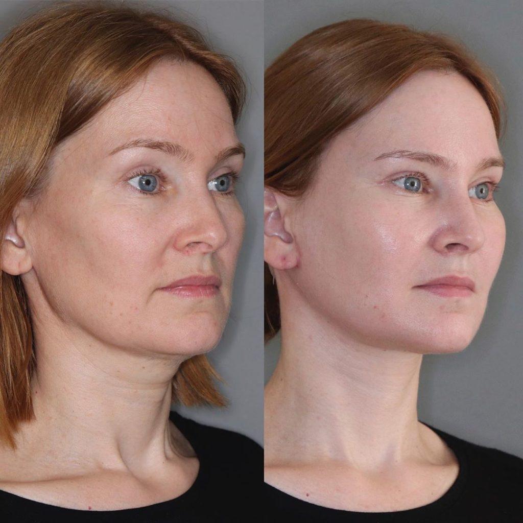 Результат ( 1,5 месяца ) после эндолифтинга