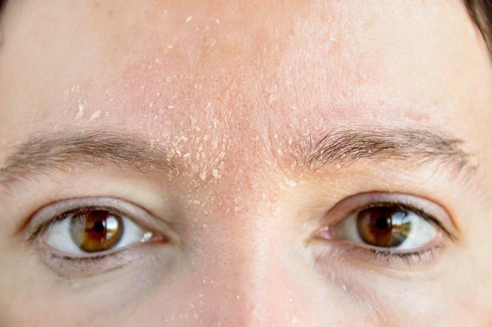 Шелушение кожи на лбу и бровях