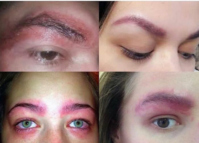 Аллергия на хну